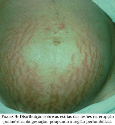 беременности фото при гепатоз